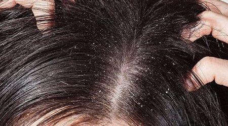Bật mí giải pháp chữa gàu và ngứa da đầu hiệu quả
