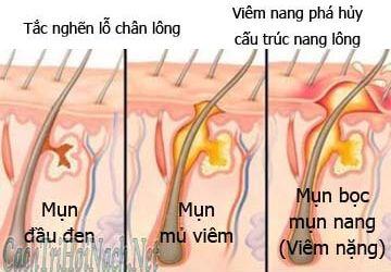 Hiểu rõ về viêm nang lông vùng nách